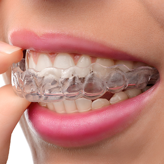 closeup of person putting clear aligners on their teeth